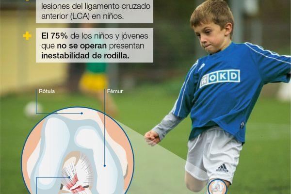 Lesiones LCA en niños