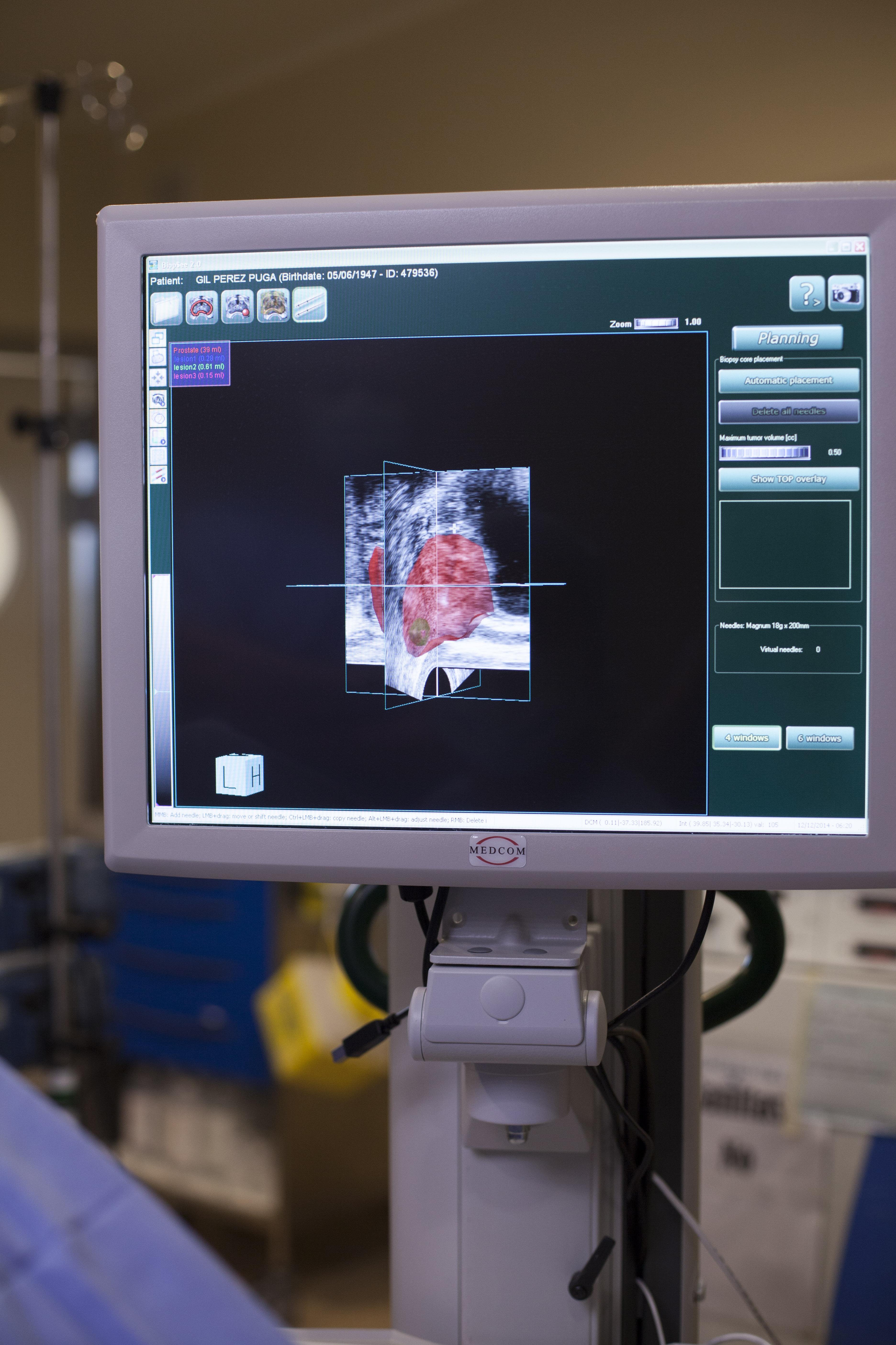 Tratamiento con láser para el cáncer de próstata en Australia