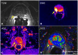 resonancia multiparamétrica imágenes de la próstata turín