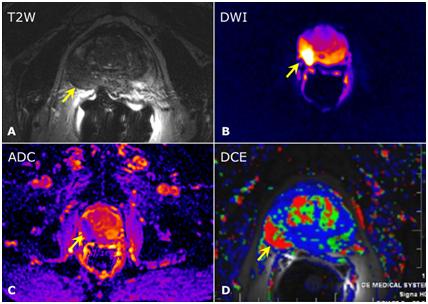 Cancer de prostata resonancia magnetica