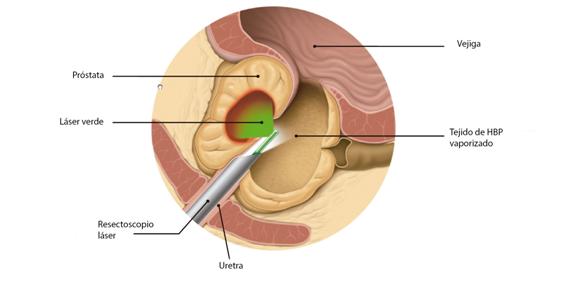 operacion de prostata con laser de tulio