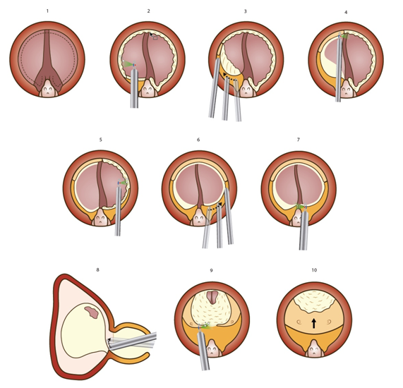 tratamiento de la próstata con láser verde