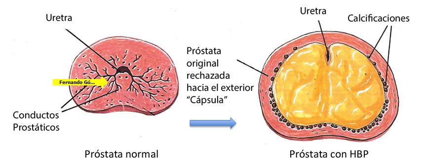 mano de tratamiento con láser para el cáncer de próstata