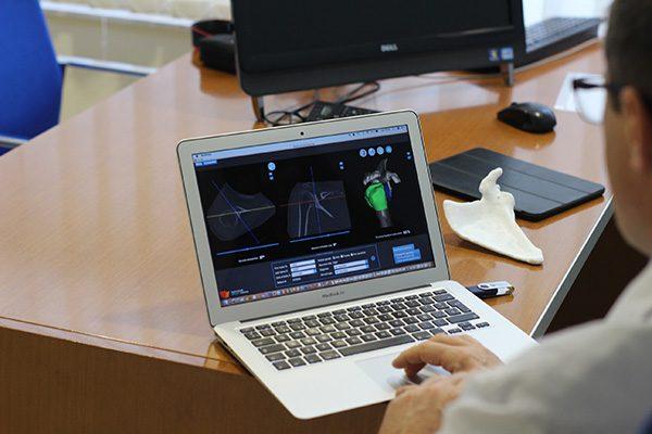 Cirugia Virtual Hombro 3D