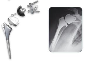 Componentes Modulares Protesis Hombro