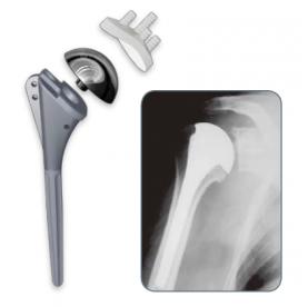 Insertar Protesis Hombro
