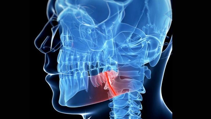 Cirugía maxilofacial e implantología