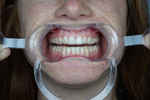 Ortodoncia Invisible Invisalign Madrid Norte