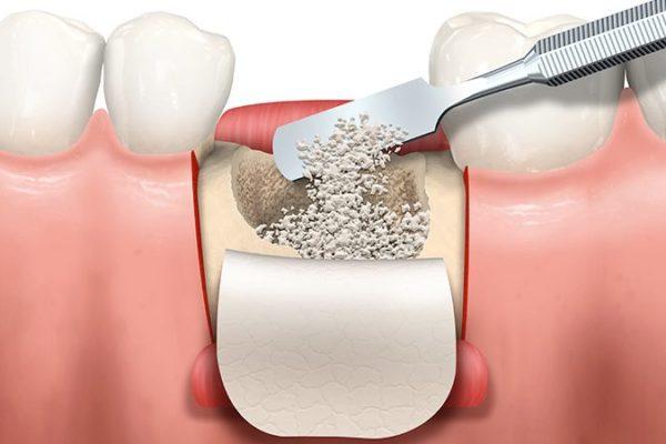 Regeneracion Osea en Implantes Dentales