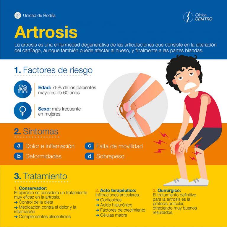 artrosis causas y sintomas