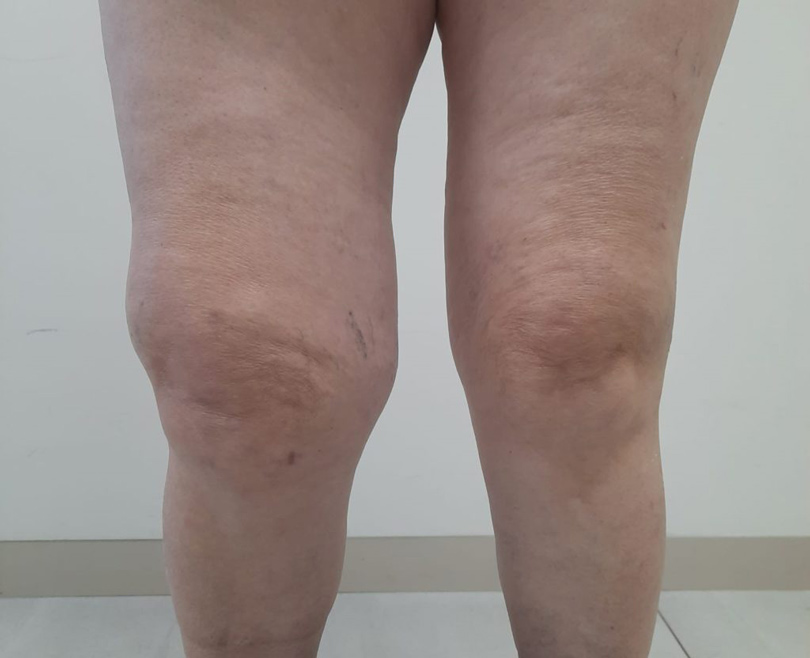 Gonartrosis Severa Rodilla protesis